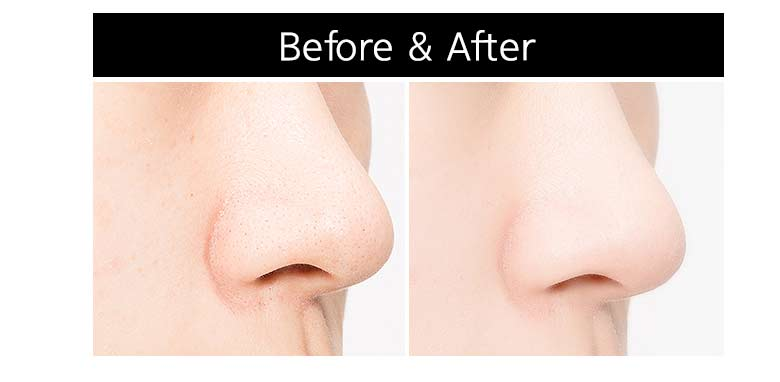 Rezultat iskanja slik za pore kling nose dual patch before after